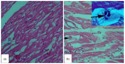 Image for - Detection of Toxoplasma gondii (Apicomplexa: Sarcocystidae) in the Brown Dog Tick Rhipicephalus sanguineus (Acari: Ixodidae) Fed on Infected Rabbits