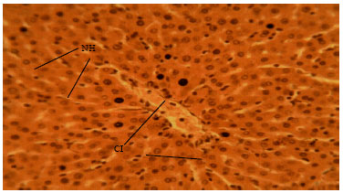 Image for - Methanolic Root Extract of Olax viridis Protects the Liver against Acetaminophen-induced Liver Damage
