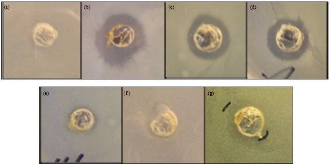 Image for - Antibacterial Activity and Cytotoxicity of Aster sphathulifolius    Maxim. Against Oral-bacteria and Oral-cancer Cell Lines