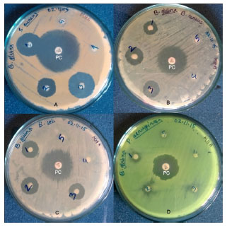Image for - In-vitro Antioxidant and Antimicrobial Activity of Bougainvillea glabra Flower