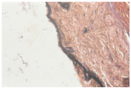 Image for - Biochemical and Histopathological Studies of Herbal Cream Against UV Radiation Induced Damage