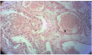 Image for - Histopathological Patterns of the Testes in Patients with Severe Burns Not Involving the Perineum (A Case Series Study)