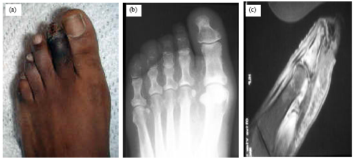 Image for - Different Procedures in Management of Diabetic Foot Infections