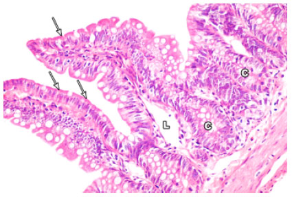 Image for - Protective Effect of Omega-3 Fatty Acids on 5-fluorouracil-induced Small    Intestinal Damage in Rats: Histological and Histomorphometric Study