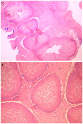 Image for - Applicability of Biomarkers for Differentiation of Inverted Papilloma Assigned for Endoscopic Surgery