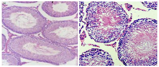 Image for - Effect of Vitamin E Supplementation on Testicular Tissues of Mice Exposed to Sub-chronic Lead Intoxication