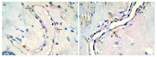 Image for - Immunohistochemical and Ultra Structural Study of Mammary Myoepithelial Cells in Pregnant and Lactating Rats