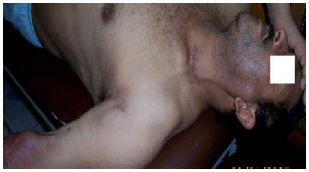 Image for - Brachial Artery-jugular Vein Graft for Hemodialysis Access: A Preliminary    Experience