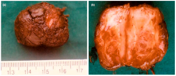 Image for - Congenital Cutaneous Squamous Cell Carcinoma in a Lamb