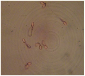 Image for - Effect of Antioxidants on the Stored Dromedary Camel Epididymal Sperm Characteristics