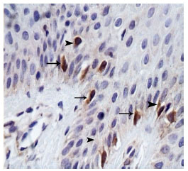 Image for - Evaluation of Therapeutic Effects of Aloe Vera: Coal Tar Mixture in Psoriasis: An Immunohistochemical Study