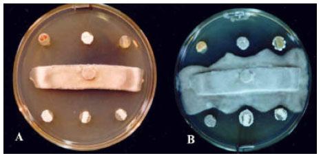 Image for - First Report of Antifungal Spectra of Activity of Iranian Actinomycetes Strains Against Alternaria solani, Alternaria alternate, Fusarium solani, Phytophthora megasperma, Verticillium dahliae and Saccharomyces cerevisiae