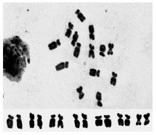Image for - Karyotype of Several Vicia Species from Iran