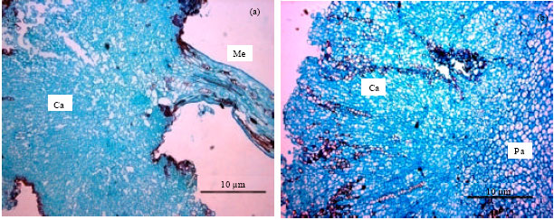 Image for - Effects of 2,4-D and Kinetin on Callus Induction of Barringtonia racemosa Leaf and Endosperm Explants in Different Types of Basal Media