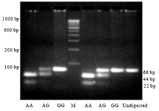 Image for - Uttar Pradesh Methionine Synthase Reductase A66g Polymorphism in Rural Population of Uttar Pradesh (India)