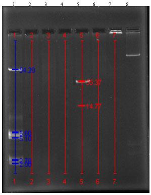 Image for - Effective Elimination of Drug Resistance Genes in Pathogenic Pseudomonas aeruginosa by Antipsychotic Agent Thioridazine