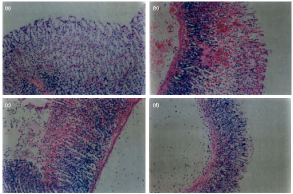 """Image for - Fennel """"Foeniculum vulgare"""" Treatment Protects the Gastric Mucosa    of Rats against Chemically-induced Histological Lesions"""