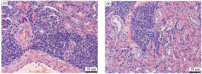 Image for - Therapeutic Effects of Triptolide on Lupus-prone MRL/lpr Mice