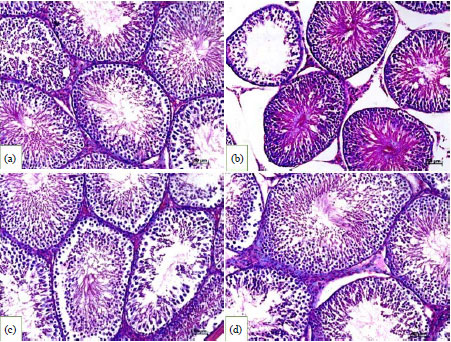 Image for - Adenium obesum Flowers Extract Mitigates Testicular Injury and Oxidative Stress in Streptozotocin-induced Diabetic Rats