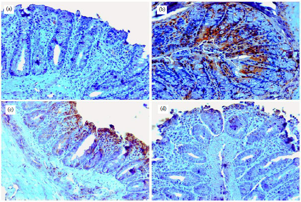 Image for - Brucine Prevents DMH Induced Colon Carcinogenesis in Wistar Rats