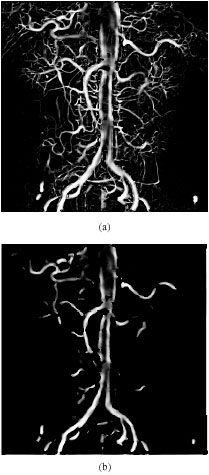 Image for - Enhancement of Angiogram Images Using Pseudo Color Processing