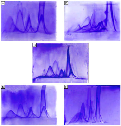 Image for - Effect of Citrus reticulata on Serum Protein Fractions of Mice After Schistosoma mansoni Infection