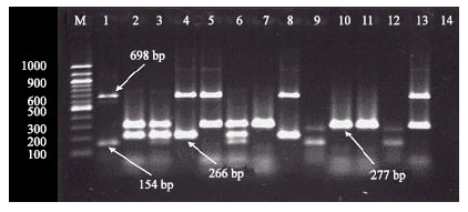 Image for - Simultaneous Detection of Enteropathogenic E. coli and Shiga Toxin-Producing  E. coli by Polymerase Chain Reaction
