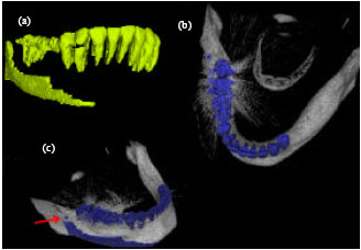 Image for - Rapid Automatic Segmentation and Visualization of Teeth in CT-Scan Data