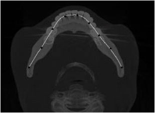 Image for - Fully Automatic Extraction of Panoramic Dental Images from CT-Scan Volumetric Data of the Head
