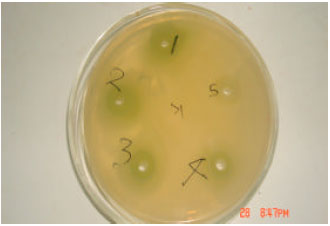 Image for - Anticandidal and Antistaphylococcal Activity of Soap Fortified with Ocimum gratissimum Extract
