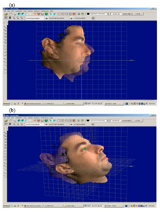 Image for - An Accurate Method to Obtain Bio-Metric Measurements for Three Dimensional Skull
