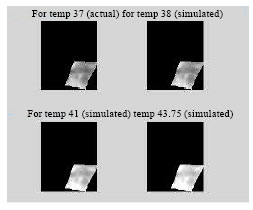 Image for - Image Enhancement by Microwave Double Irradiation for Early Diagnosis of Breast Carcinoma