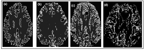Image for - Taxonomy of Brain White Matter under Normal and Abnormal Conditions using Stochastic Properties of Brain