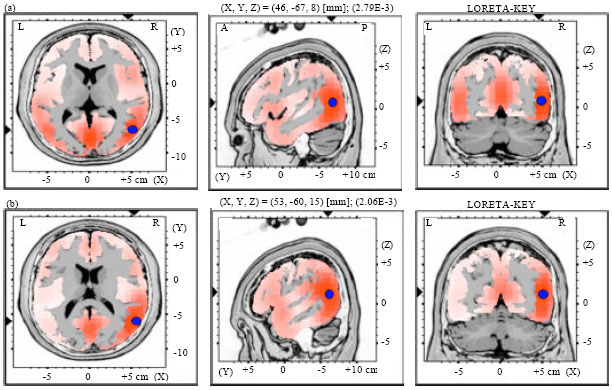 Image for - Source Localization of Preattentive Processing for Different Vowel Duration Changes with Contour Tones in Monosyllabic Thai Words