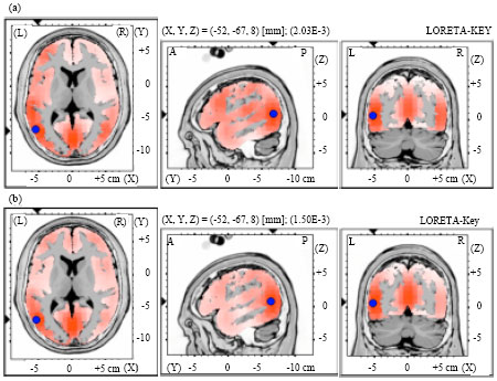 Image for - Cortical Activation of Level-to-Contour Tone Changes in Different Vowel Duration Indexed by Mismatch Negativity
