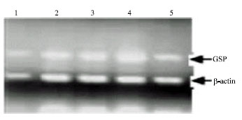 Image for - Analysis of LDL Receptor mRNA Expression, Serum Biochemical and Abdominal Fat Weight in Fat and Lean Chickens