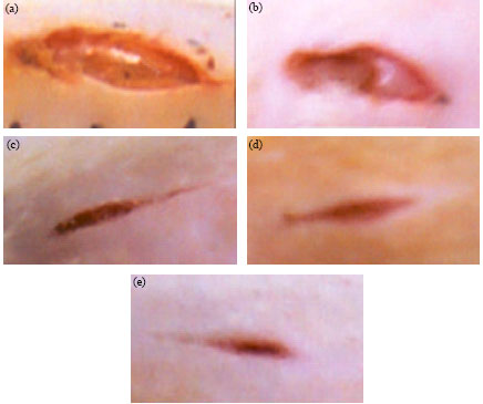 Image for - Effects of Strobilanthes crispus Juice on Wound Healing and Antioxidant Enzymes in Normal and Streptozotocin-Induced Diabetic Rats