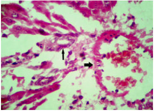Image for - Biochemical and Pathological Study of Protective Effect of Vitamin E in Azathioprine-Induced Hepatotoxicity in Rat