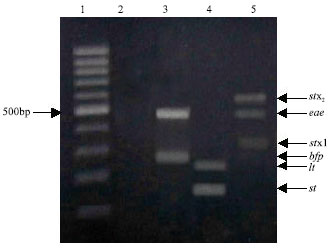 Image for - Multiplex PCR for Detection of Diarrheagenic Escherichia coli in Egyptian Children