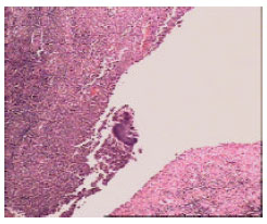 Image for - Meckel's Diverticulitis Due to Actinomycosis