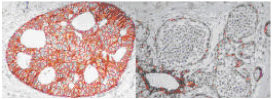 Image for - Histopathological and Immunohistochemical Study of  E-cadherin in Breast Neoplasia