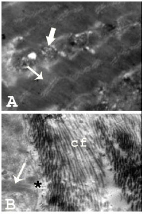 Image for - Morphological Features of Normal Human Skeletal Muscle in Different Age Groups: A Histological and Ultrastructural Study
