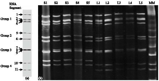 Image for - Electrophoretypes Characterization of Human Rotavirus in Two Pediatric Services, Ouagadougou, Burkina Faso