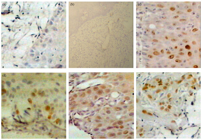 Image for - Morphologic Evaluation of P53 Apoptotic Signaling Responses and Proliferative Activity of Ki-67 in Oral Lichen Planus, Oral Squamous Cell Carcinoma and Normal Specimens