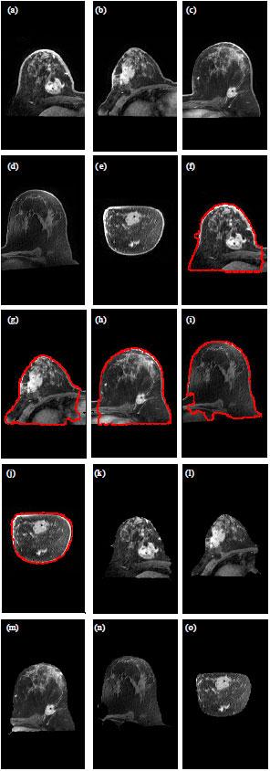 Image for - MRI Breast Skin-line Segmentation and Removal using Integration Method of Level Set Active Contour and Morphological Thinning Algorithms
