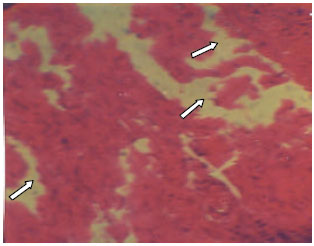 Image for - Influence of L-arginine on the Heart Histology and Function Markers of Metabolic Syndrome in Female Wistar Albino Rats