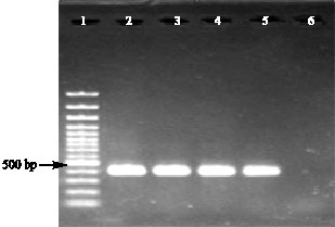 Image for - Controlled Expression of Cholera Toxin B Subunit from Vibrio holerae in Escherichia coli