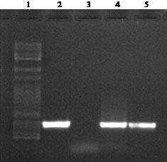 Image for - No Detected Hepatitis B Virus-DNA in Thalassemic Patients Infected by Hepatitis C Virus in Kerman Province of Iran