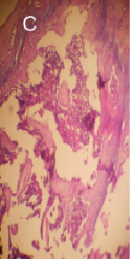 Image for - Preventive Effects of Flaxseed and Sesame Oil on Bone Loss in Ovariectomized Rats