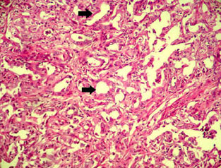 Image for - An Abattoir Study on Hepatic Tumors of Sheep